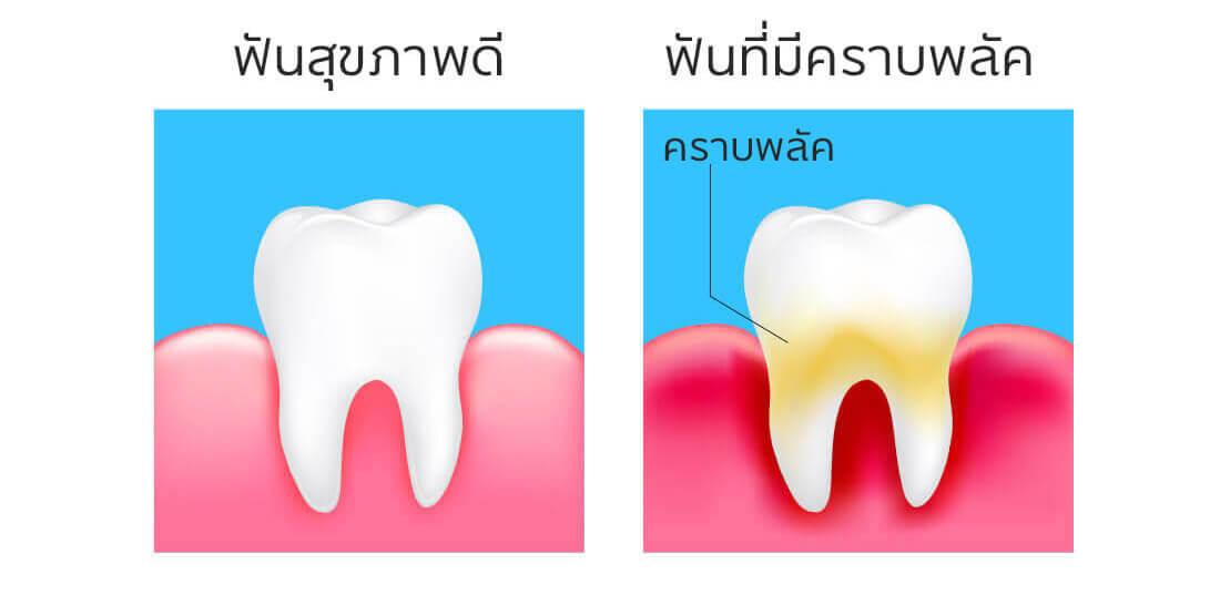 ฟันผุ_ฟันสวย